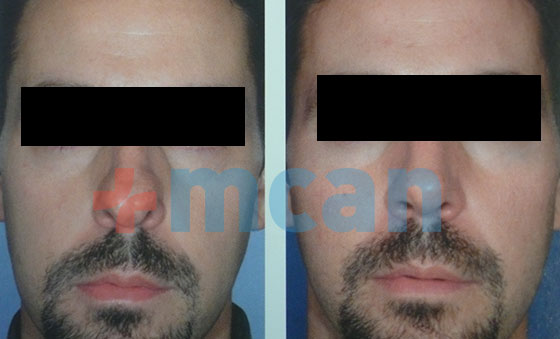 mcan-health-rhinoplasty