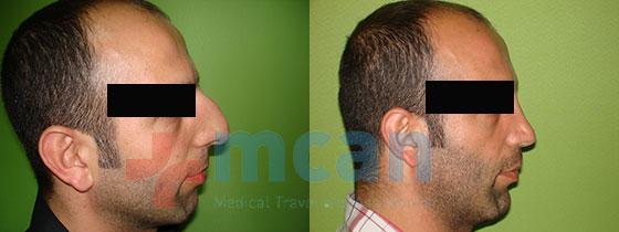 næseoperationer tyrkiet