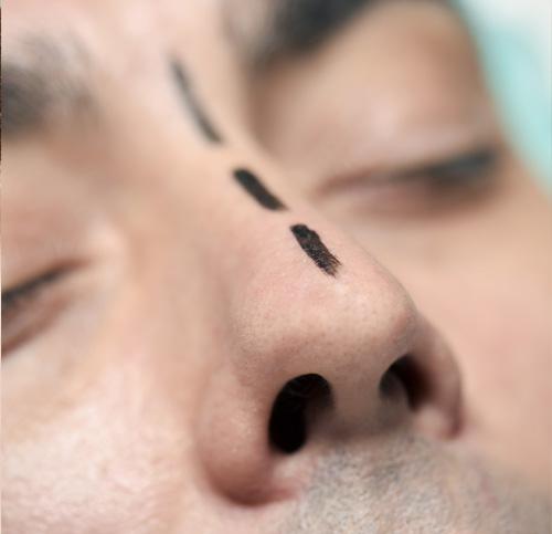 næseoperation københavn